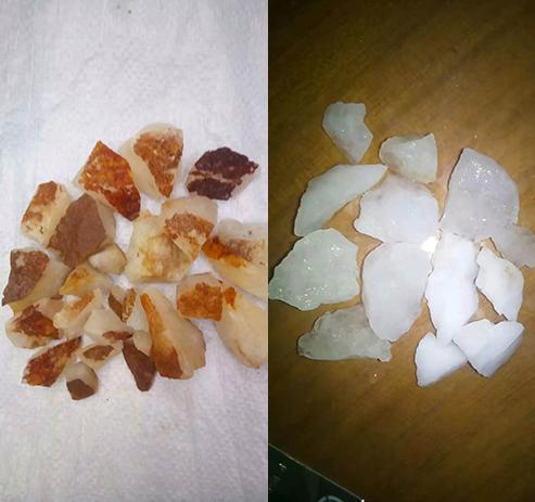 洗石剂:水溶性钾制取钾肥的工艺路线